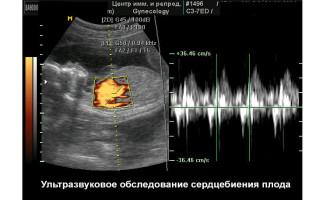 Определить пол по сердцебиению
