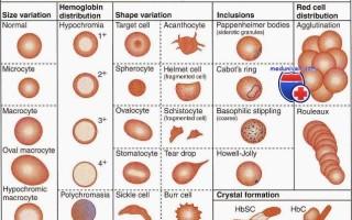Причины пойкилоцитоза в общем анализе крови и характеристика патологии