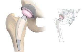 Разновидности осложнений после эндопротезирования тазобедренного сустава