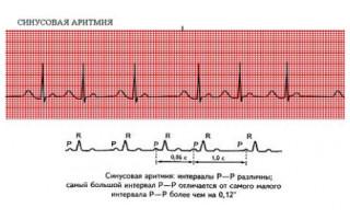 Ритм сердца нерегулярный синусовый