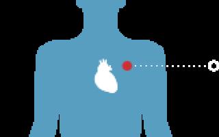 Что необходимо знать о миокардите у детей: памятка для взрослых людей