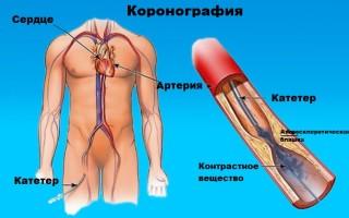 Коронарография сердца: Что это такое ангиография