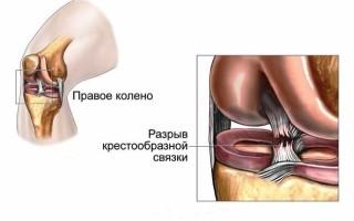 Классификация заболеваний, которые могут затрагивать коленный сустав