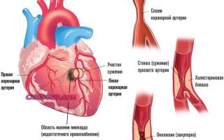 Операция шунтирование сосудов сердца