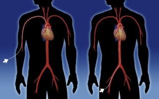 Что такое рча сердца