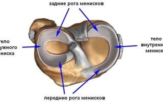 Лечение и диагностика разрыва заднего рога медиального мениска коленного сустава