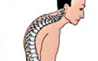Классификация степеней кифоза, симптомы, диагностика и лечение