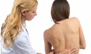 Диагностика нефиксированного и фиксированного сколиоза: причины и лечение