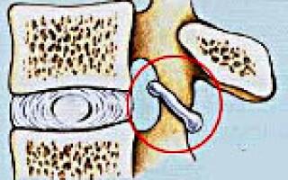 Спондилоартроз позвоночника в грудном отделе – симптомы, лечение и профилактика