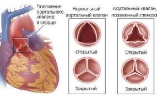 Операция по замене клапана сердца