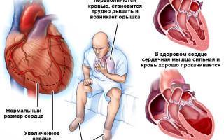 Хроническая сердечно сосудистая недостаточность