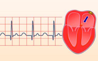 Что это такое и симптомы проявления синусовой тахикардии сердца у взрослого человека