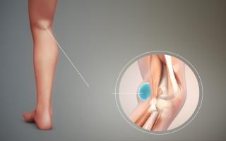 Причины возникновения, симптомы и лучшие методы лечения кисты мениска коленного сустава