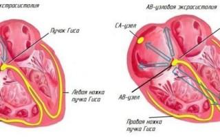 Наджелудочковая эктопическая активность норма