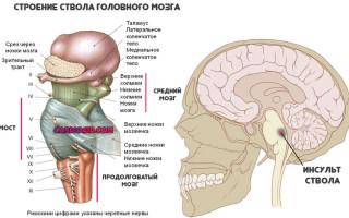 Что такое обширный инсульт и его последствия