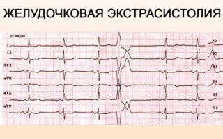 Чем опасны экстрасистолы сердца
