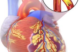 Скрытая опасность инфаркта перенесенного на ногах, как вовремя распознать болезнь?