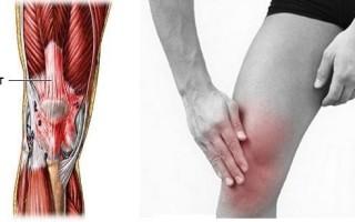 Что является причиной воспаления связок коленного сустава и как его лечить