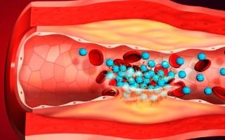 Симптомы тромбоза нижних конечностей