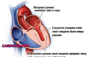 Диффузные изменения миокарда левого желудочка