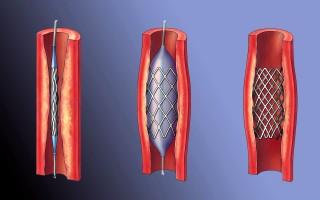 Лучше стентирование или шунтирование – что говорят специалисты?