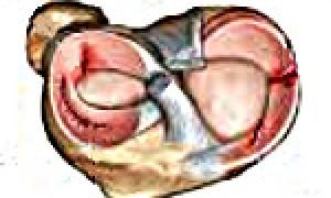 Симптомы менископатии коленного сустава, этиология, диагностика, терапия