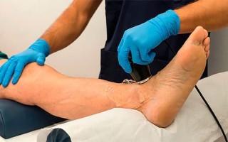 Как вылечить атеросклероз нижних конечностей