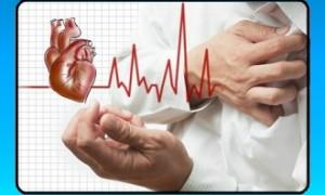 Лечение мерцательной аритмии сердца народными средствами, причины заболевания и профилактика