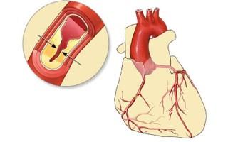 Лечение атеросклероза аорты сердца