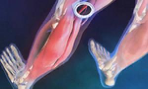 Окклюзия бедренной артерии что это такое