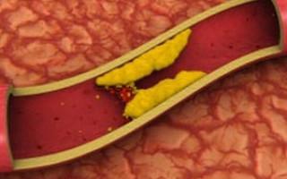 Склероз аорты легких что это