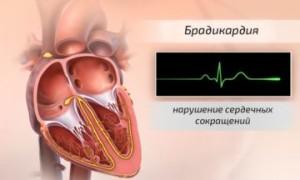 Препараты при брадикардии и повышенном давлении