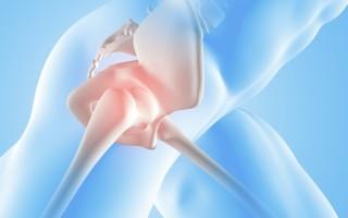 Болезни тазобедренного сустава: симптомы и лечение, диагностика и профилактика