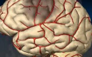Транзиторная ишемическая атака последствия