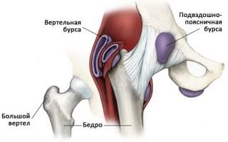 Основные симптомы бурсита тазобедренного сустава и новейшие методики лечения болезни