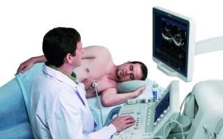 Что такое исследование сердца методом Эхо КГ