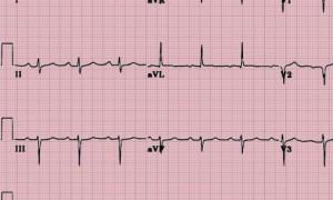 Классификация синусового ритма: что может рассказать кардиограмма о состоянии сердца?