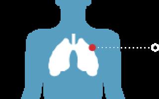 Причины хруста в грудной клетке, сопутствующие симптомы, правила диагностики и терапии
