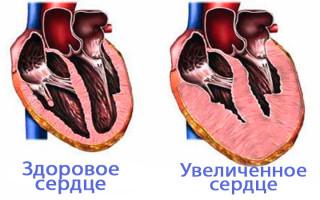 Увеличенное сердце что это такое