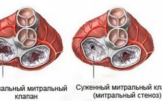 Митральный клапан сердца лечение