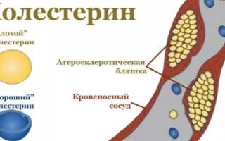 Диффузный атеросклеротический кардиосклероз – диагностика и лечение