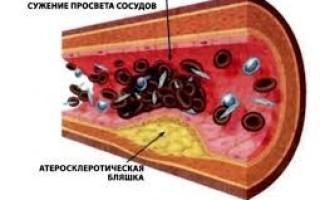 От чего тромбы образуются