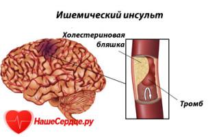 Инсульт ишемический лечение
