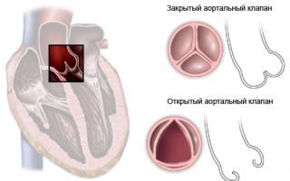 Особенности строения аортального клапана сердца человека