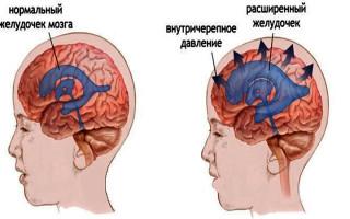 Косвенные признаки внутричерепной гипертензии что это