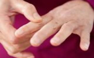 Есть ли необходимость обращаться к врачу при болях большого пальца на руке у основания