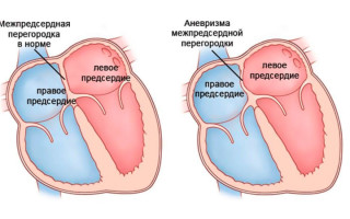 Аневризма межпредсердной перегородки у новорожденного