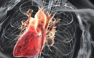 Лечение порока сердца