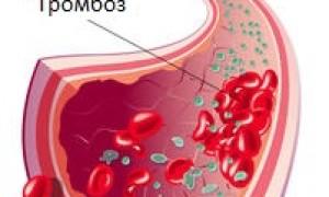 Определение, исследование и лечение патологии протромбинового времени