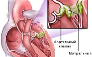 Инфекционный эндокардит лечение